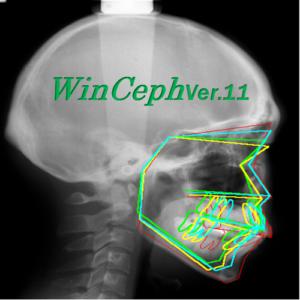 Winceph Ver.11 Orthodontic treatment analysis & database